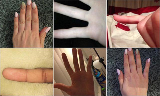 Zdeformované prsty z používání smartphonu